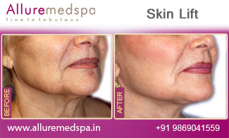 Skin Lift Before and After Gallery by Celebrity Cosmetic Surgeon Dr. Milan Doshi in Mumbai, India