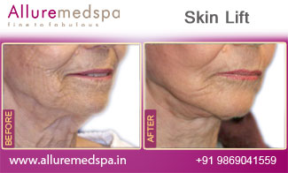 Skin Lift Before and After Photos by Celebrity Cosmetic Surgeon Dr. Milan Doshi in Mumbai, India