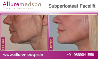 Subperiosteal Facelift Before and After in Mumbai, India
