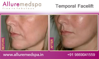 Temporal Facelift Before and After in Mumbai, India
