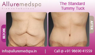 Standard Tummy Tuck Before and After in Mumbai, India