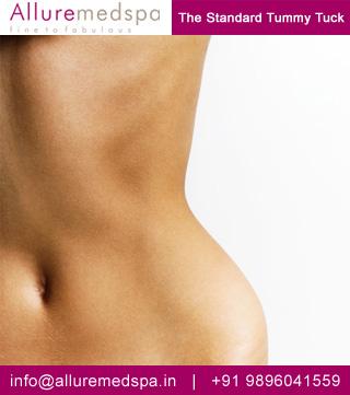 Standard Tummy Tuck, Abdominoplasty Surgery in Mumbai, india