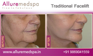 Traditional Facelift Before and After in Mumbai, India