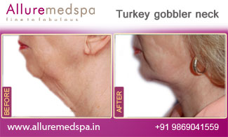 Turkey Gobbler Neck Before and After in Mumbai, India