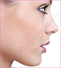 Twisted/ Crooked Nose Job Surgery in Mumbai, India