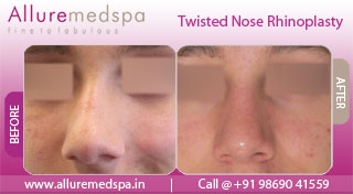 Crooked Nose Rhinoplasty Surgery - Before and After Photos, Mumbai, India