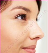 Crooked Nose Rhinoplasty Surgery in Mumbai, India