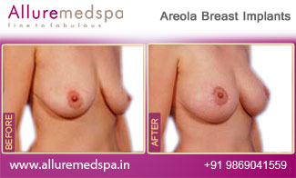 Areola Breast Implants Mumbai, India