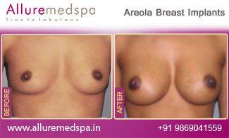 Areola Breast Implants Before and After Mumbai, India