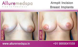 Armpit Incision Before and After Mumbai, India