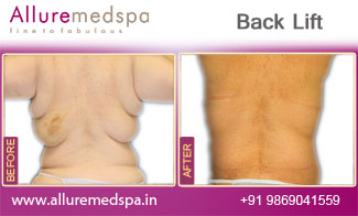 Back Lift Surgery Before and After in Mumbai, India