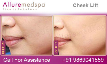 Cheek Lift Before and After photoes Mumbai India