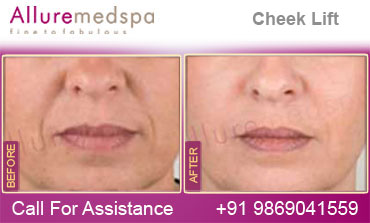 Cheek Lift Before and After in Mumbai, India