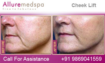 Cheek Lift Before and After photoes in Mumbai, India