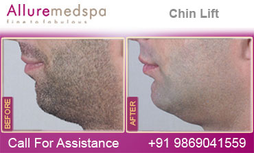 Chin Lift Before and After in Mumbai, India