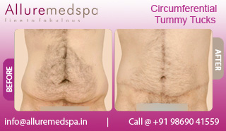 Circumferential Tummy Tuck Before and After in Mumbai, India
