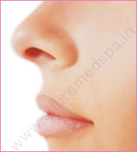 Twisted Nose Rhinoplasty Surgery in Mumbai, India