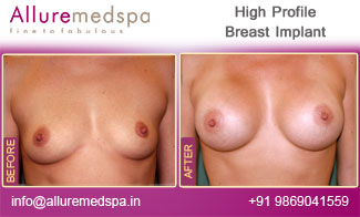 High Profile Breast Implant Before and After Mumbai, India