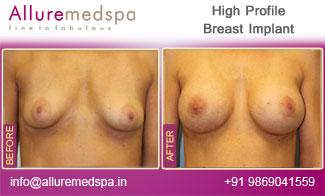 High Profile Breast Implant  Mumbai, India