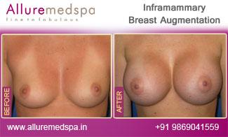 Inframammary Breast Implant Mumbai, India