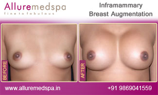 Inframammary Breast Implant Before and After in Mumbai, India