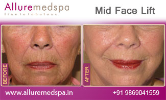 Mid Face Lift Before and After in Mumbai, India