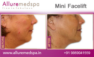 Mini Facelift Before and After Images at Reasonable Price in Mumbai, India