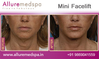 Mini Facelift Before and After Pictures at Affordable Cost in Mumbai, India