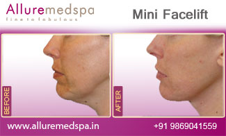 Mini Facelift Before and After Gallery by Celebrity Cosmetic Surgeon Dr. Milan Doshi in Mumbai, India