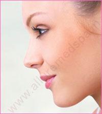 Nose Tip Rhinoplasty Surgery in Mumbai, India