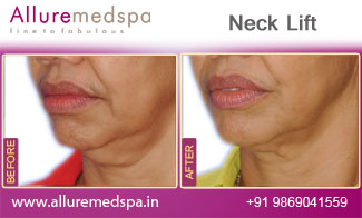 Neck Lift Before and After in Mumbai, India