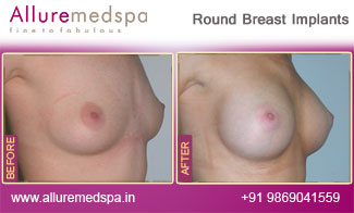 Round Breast Implants Before and After Mumbai, India