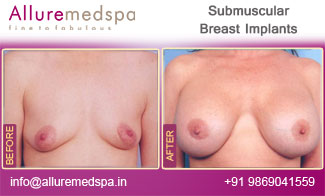 Submuscular Breast Implants Before and After  Mumbai India