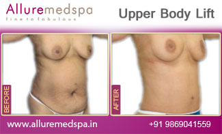 Upper Body Lift Before and After in Mumbai, India