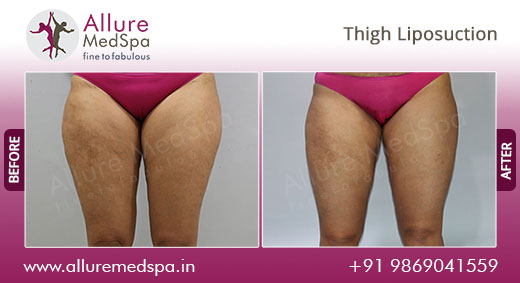 Thigh Vaser Liposuction Before After Images at Alluremedspa Mumbai, India
