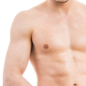 Adolescent Gynecomastia in Mumbai, India