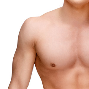 Asymmetric Gynecomastia in Mumbai, India