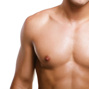 Bilateral Gynecomastia in Mumbai, India