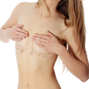 Breast Lift in Mumbai, India