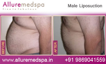 Male Liposuction Before And After Pictures at Alluremedspa Mumbai India