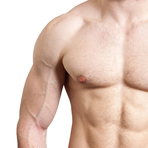 Male Nipple Reduction in Mumbai, India