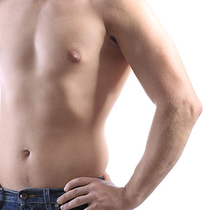 Pseudo Gynecomastia in Mumbai, India
