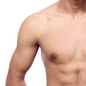 Puffy Nipple Gynecomastia