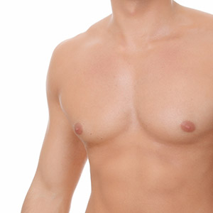 Severe Gynecomastia in Mumbai, India