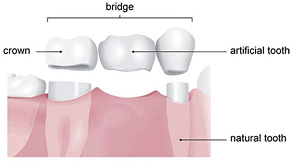 Dental Crowns And Bridges For Teeth