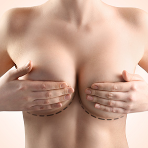 Round Breast Implants in Mumbai, India