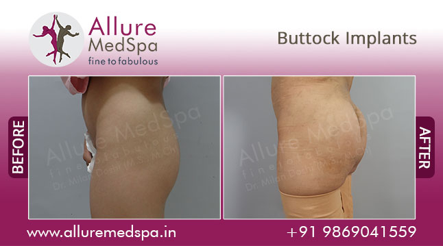 Buttock Implants Before and After Pictures at Transparent Price in Mumbai, India