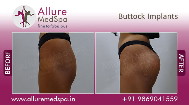 Buttock Augmentation Before and After Pictures by Celebrity Cosmetic Surgeon Dr. Milan Doshi in Mumbai, India