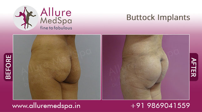 Gluteoplasty Before and After Photos by Celebrity Cosmetic Surgeon Dr. Milan Doshi in Mumbai, India