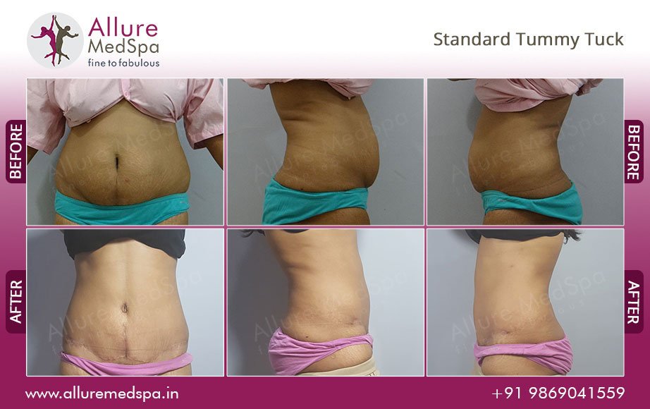 Standard Tummy Tuck Abdominoplasty Surgery Before After Photos Mumbai India